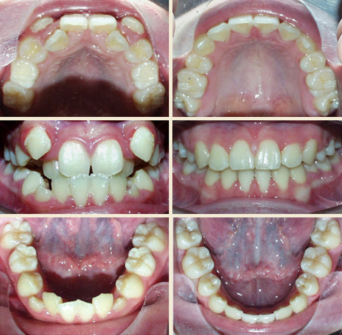 Before and After - Richmond Hill, ON | Richmond HIll ... Invisalign Before And After Severe Crowding